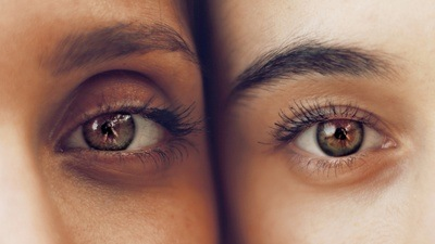 Person's Eyes Photo