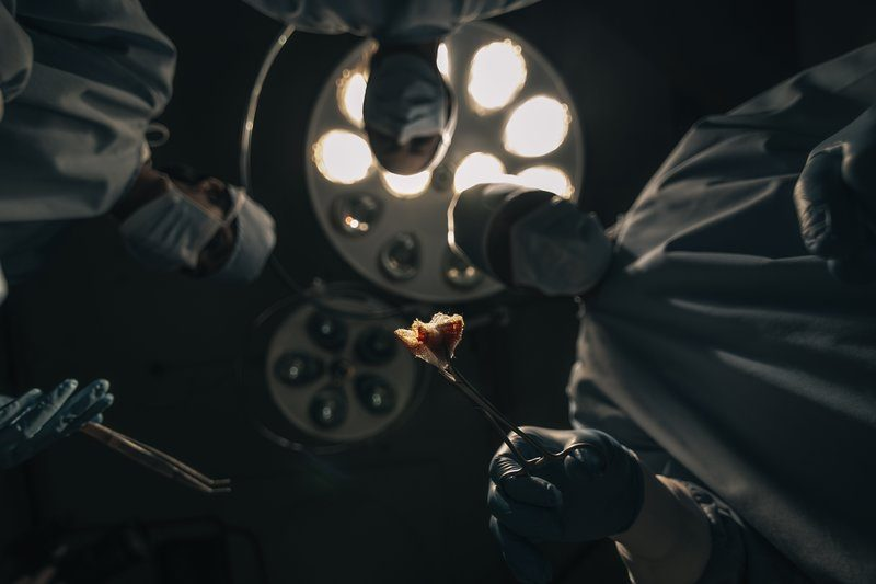 Staring Up At Three Surgeons Mid-Operation